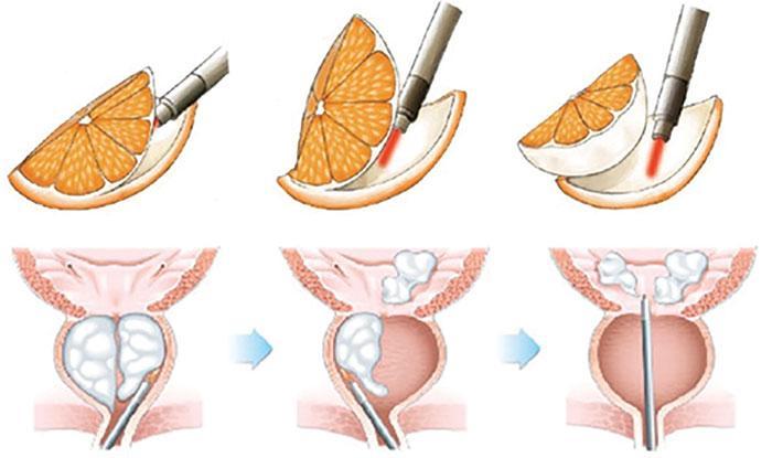 ¿Por qué alguien tendría una cirugía de próstata?